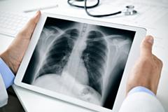Заболеваемость пневмонией в Удмуртии выросла в 5,5 раза