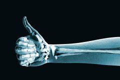 120 лет назад было открыто рентгеновское излучение