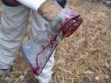 В Удмуртии мужчина жестоко избил свою неверную подругу топором